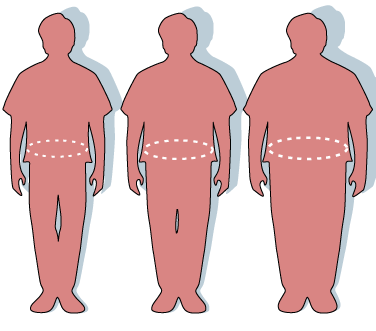 Three silhouettes depicting the outlines of a normal sized (left), overweight (middle), and obese person (right). Image by Victovoi via Wikipedia. Public domain.