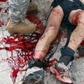 Injured spectator on a bloody sidewalk after Boston marathon bombing
