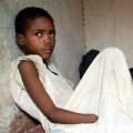 Boy who lost hand in Darfur