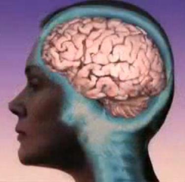 Female brain, side view
