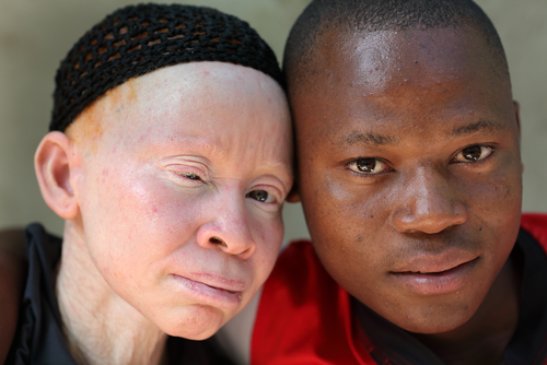 "Thanks to Witchcraft, Albinos Face ""Extinction"" in Malawi, U.N. Expert Says"