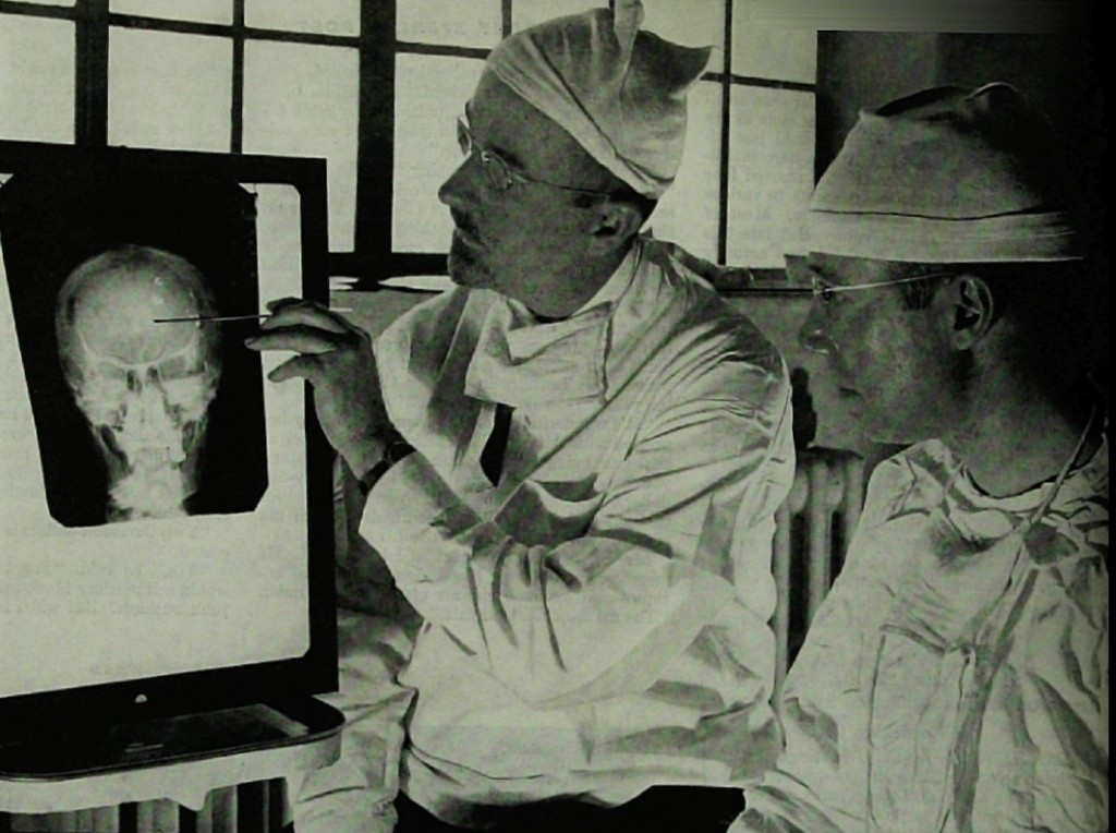 "Original caption: ""Dr. Walter Freeman, left, and Dr. James W. Watts study an X ray before a psychosurgical operation. Psychosurgery is cutting into the brain to form new patterns and rid a patient of delusions, obsessions, nervous tensions and the like."" from Saturday Evening Post 1941, pages 18-19. Photo Source Wikimedia Commons. Public Domain."
