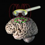 It's not all science fiction.  Check out Transcranial Magnetic Stimulation (http://en.wikipedia.org/wiki/Transcranial_magnetic_stimulation) or brain implants for depression (http://www.nature.com/news/2011/110207/full/news.2011.76.html)