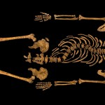 Richard III scoliosis