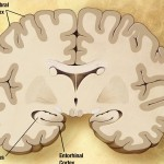 Is a Cure for Alzheimer's On its Way?