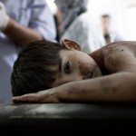 A boy is treated after he sustained injuries from an airstrike in the Sha'ar neighborhood of Aleppo, Syria, on Friday, August 24, 2012. Photo by Near East Observatory